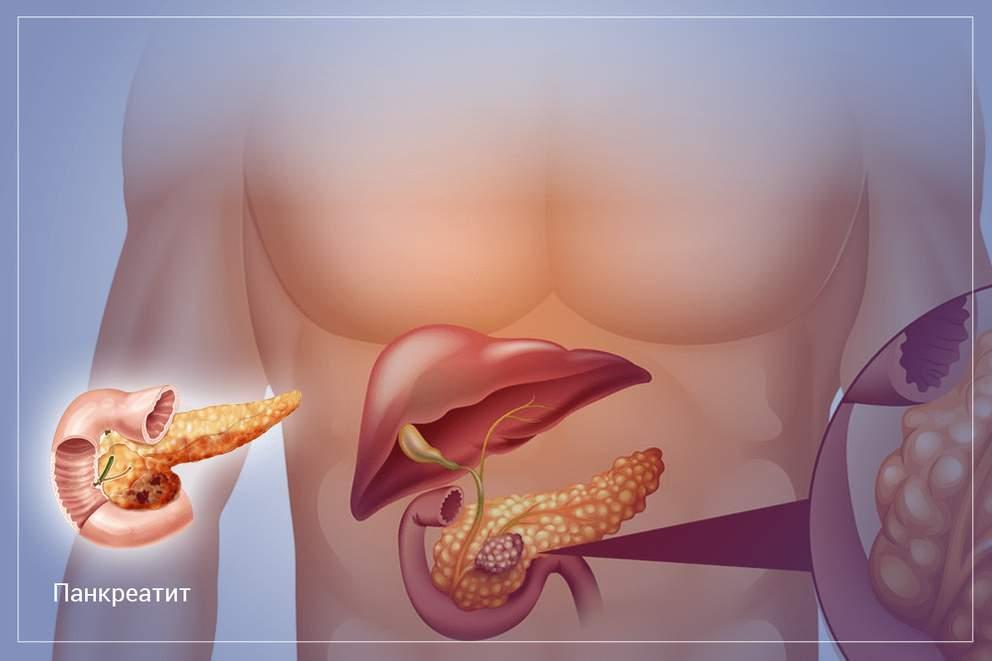 Как восстановить пищеварение при заболеваниях поджелудочной железы