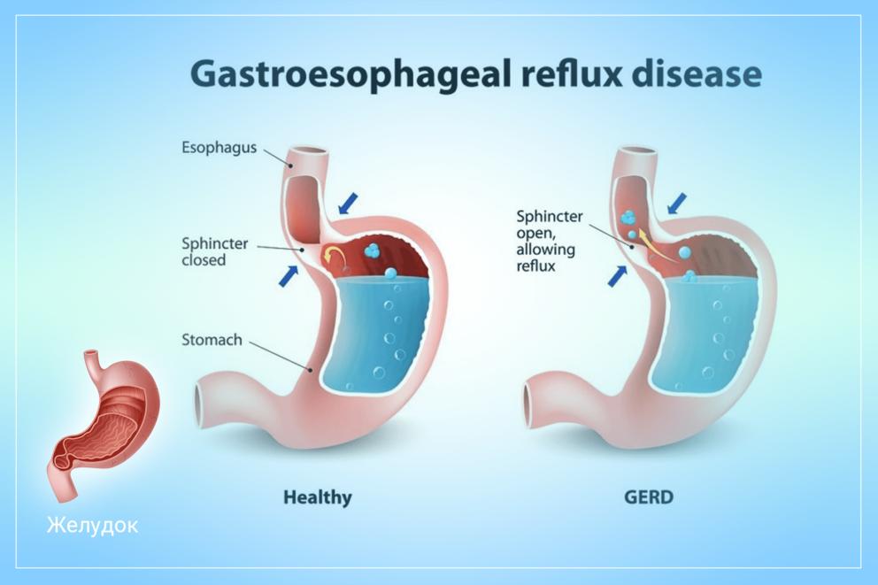 Как восстановить защитные свойства желудка при рефлюксной болезни
